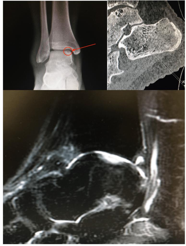Imagen de radiografía, TC y Resonancia Magnética de una lesión osteocondral astragalina.